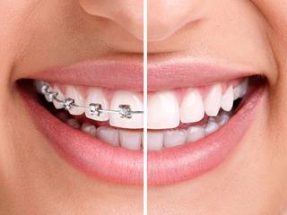 ortodonzia fissa ed invisibile