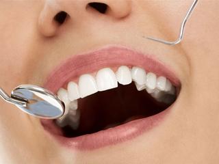 infiammazione gengivale parodontologia