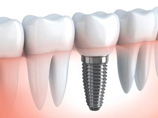 impianti implantologia