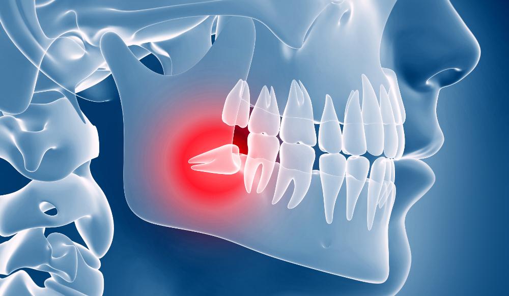 chirurgia orale dente del giudizio