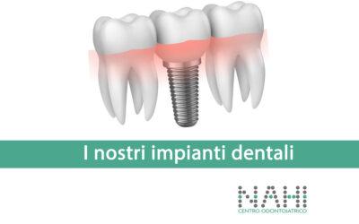 Gli impianti dentali sono tutti uguali?